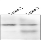 SOX4 Antibody Used for Western Blot Analysis of Glioma Cell Lysate