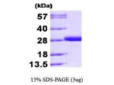 Recombinant Bacteria GST Epitope Tag Protein