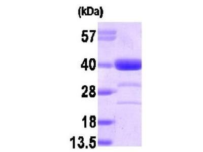 AKR1A1 Protein