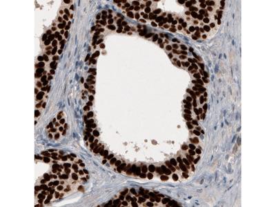 Anti-GRHL2 Antibody