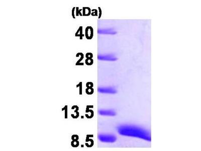 ATOX1 Recombinant Protein