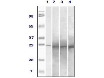 Rab25 Antibody [3F12F3]