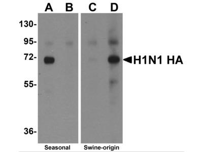 Seasonal H1N1 Hemagglutinin Antibody