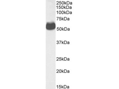 Anti-Human GLUT4, Affinity Purified, (Polyclonal), (Rabbit IgG)