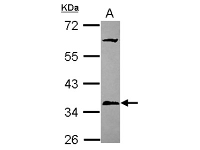 Anti-PPT1 antibody [N1C3]