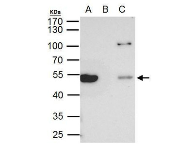 Anti-beta Tubulin 8 antibody [C2C3], C-term