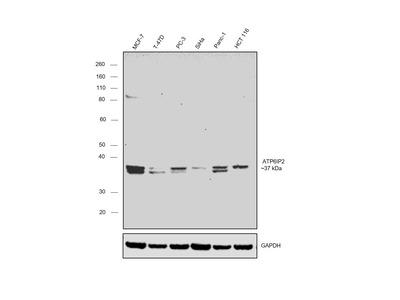 ATP6IP2 Polyclonal Antibody