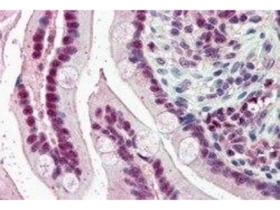 KPNA4 Polyclonal Antibody