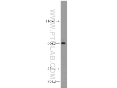 PLEKHA9 Polyclonal Antibody