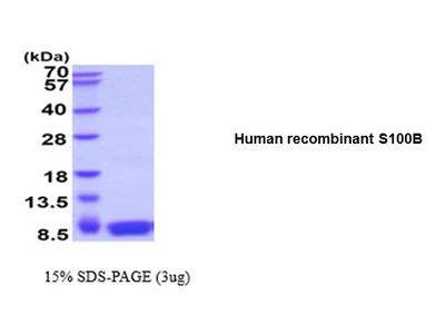 S100B, human recombinant