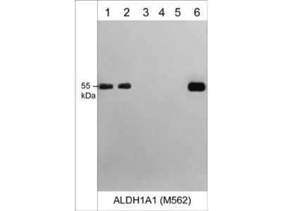 ALDH1A1 (N-terminal region) M562 Antibody