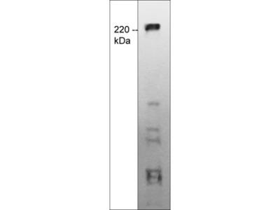 TRPM7 (Extracellular region) M573 Antibody