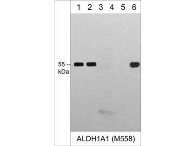 ALDH1A1 (N-terminal region) M558 Antibody