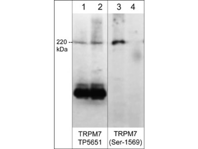 TRPM7 (Extracellular region) Antibody