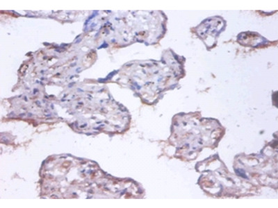 COMM domain-containing protein 4 Polyclonal Antibody