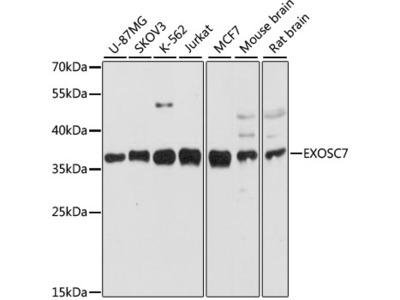 EXOSC7 Polyclonal Antibody