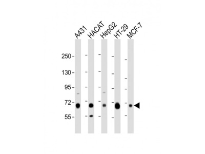LSR Antibody (C-Term)