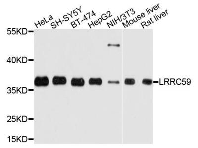 LRRC59 Polyclonal Antibody