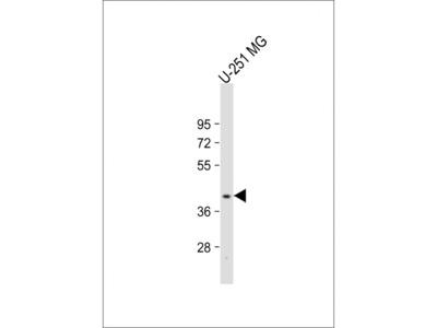 PNPLA5 Antibody (Center)