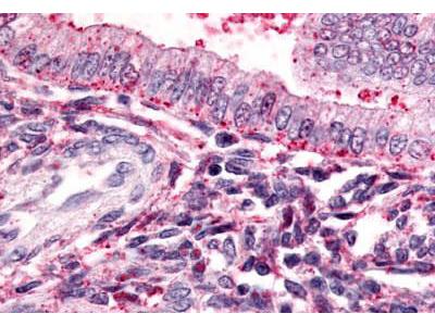 Rabbit Anti-TBXA2R/Thromboxane A2 Receptor Antibody