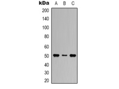 Anti-Beta3-tubulin Antibody