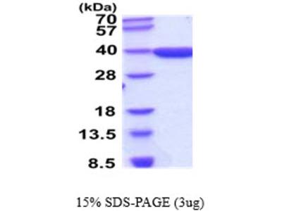 AKR1D1, 1-326aa, Human, E Coli