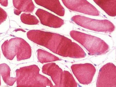 Mouse Anti-NOS2 / iNOS Antibody