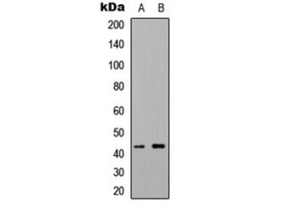 Anti-5-HT1F Antibody