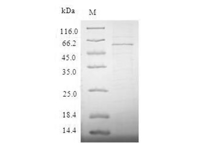 Recombinant Human Metalloreductase STEAP1 (STEAP1)