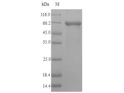 Recombinant Human Bifunctional heparan sulfate N-deacetylase/N-sulfotransferase 1