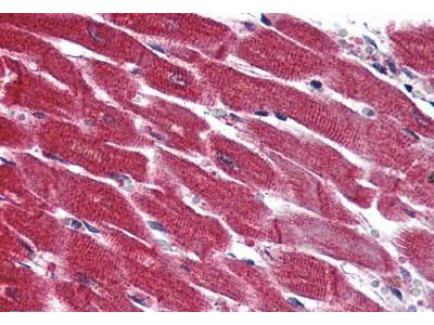 Rabbit Anti-SIPR3 / EDG3 / S1P3 Antibody