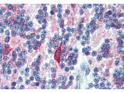Mouse Anti-MAP2 / MAP-2 Antibody