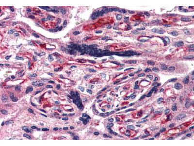 Rabbit Anti-ADCYAP1R1 / PAC1 Receptor Antibody