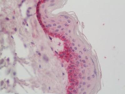 Rabbit Anti-COL17A1 / Collagen XVII Antibody