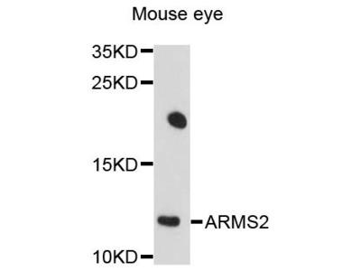 ARMS2 Polyclonal Antibody