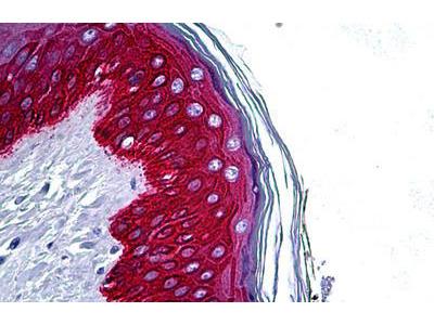 Rabbit Anti-KRT14 / CK14 / Cytokeratin 14 Antibody
