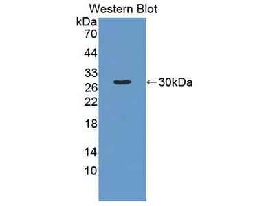 Rabbit Anti-Antigen Peptide Transporter 2 Antibody