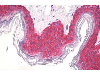 Mouse Anti-KRT14 / CK14 / Cytokeratin 14 Antibody