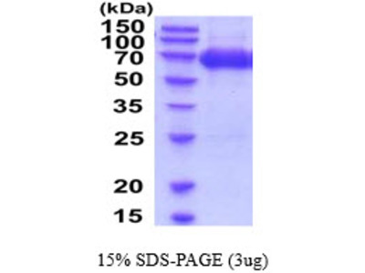 Intercellular adhesion molecule 1, 28-485aa, Mouse, His tag, Baculovirus