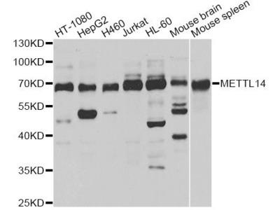 METTL14 Polyclonal Antibody