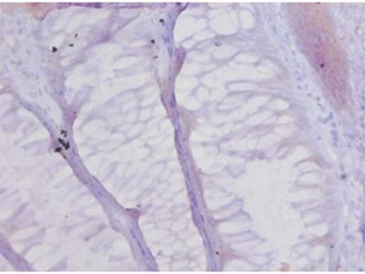 Rabbit Anti-Collagen alpha-1chain Antibody