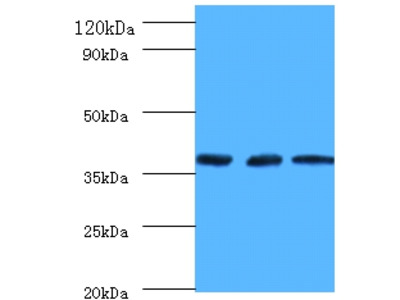 Rabbit Anti-Putative tRNA-methyltransferase Antibody