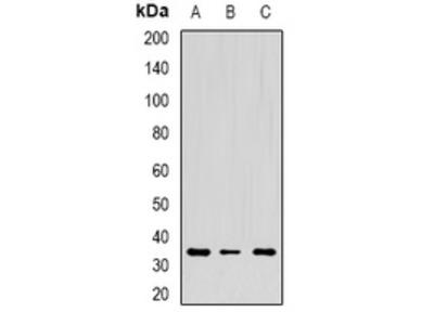 Anti-CD272 Antibody