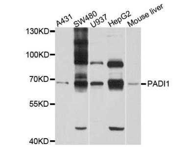 PADI1 Polyclonal Antibody