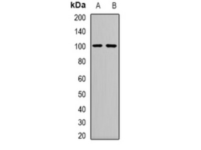 Anti-Neutral Ceramidase Antibody