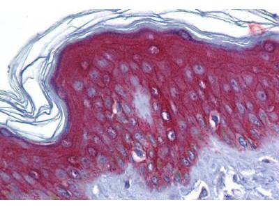 Rabbit Anti-JUP/CTNNG/Junction Plakoglobin Antibody