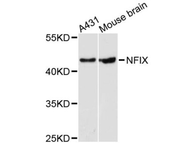 NFIX Polyclonal Antibody