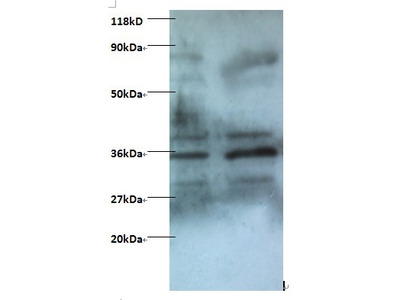 Zinc finger BED domain-containing protein 1 protein Polyclonal Antibody