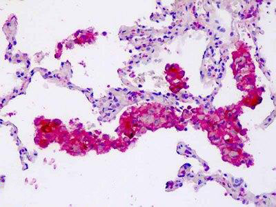 Anti-CORO6 Antibody (aa344-373) IHC-plus