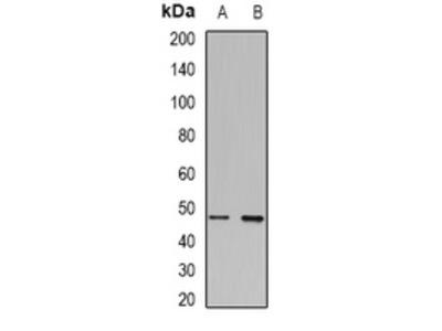 Anti-Transcobalamin-1 Antibody
